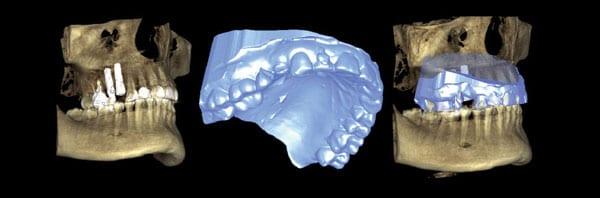צילום לפני ניתוח חניכיים